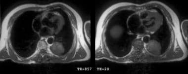 T1-weighted chest magnetic resonance images show a