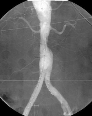 Arteriogram after successful endovascular repair o