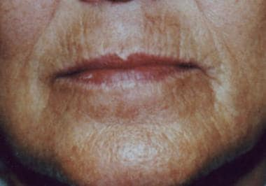 The perioral pigmentation depicted here can worsen