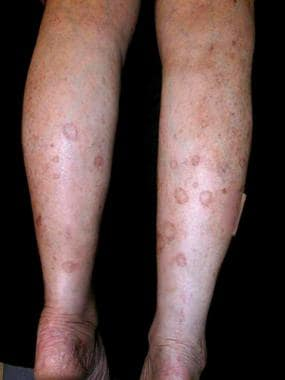 Disseminated superficial actinic porokeratosis on