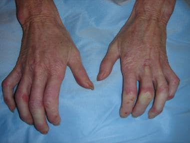 Sclerodactyly (also with Raynaud phenomenon).