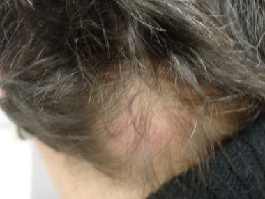 Alopecia due to primary cutaneous follicular cente