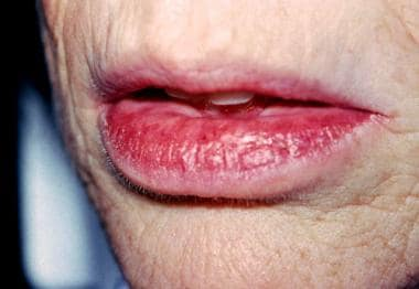 A 56-year-old woman with an 18-month history of ch