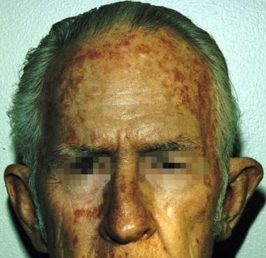 Actinic keratosis. Courtesy of Hon Pak, MD.