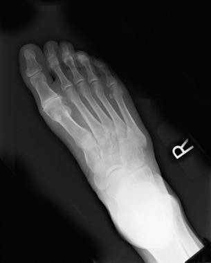 Preoperative radiograph shows degenerative joint d