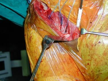 Ilioinguinal approach: Femoral vessels and the ili