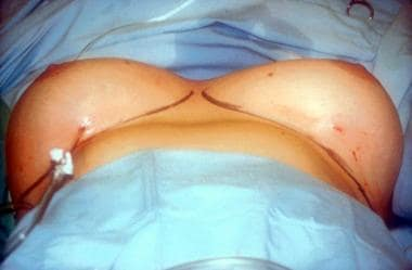 The right breast is infiltrated up to tumescence w