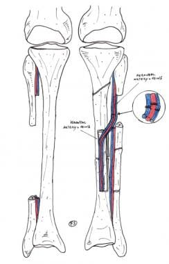 Clinical Case 1. Postoperative drawing. Schematic