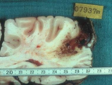 Brain metastasis of alveolar echinococcosis. Court