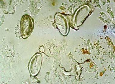 Microscopic view of Enterobius vermiculariseggs at