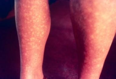 Patient with morbilliform exanthem of dengue fever