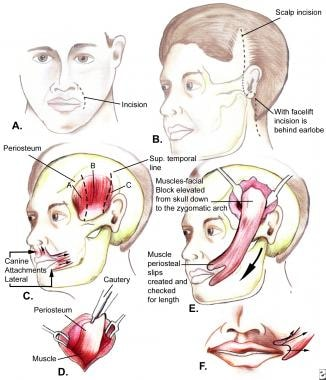 The temporalis muscle transfer; nasolabial incisio