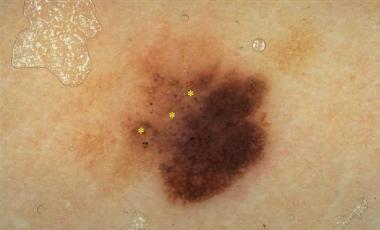 In situ melanoma with asymmetric color distributio