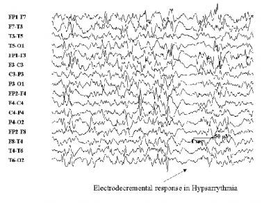 Electroencephalogram demonstrating hypsarrhythmia.