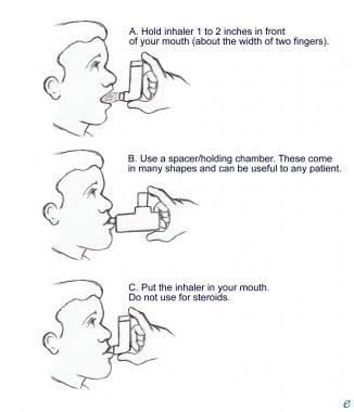 Metered dose inhaler (MDI) positioning.