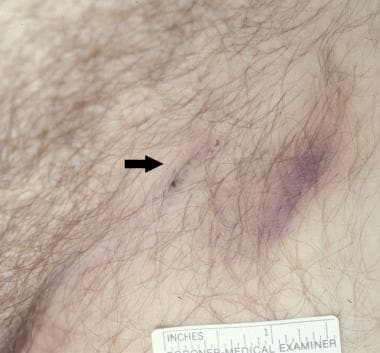 Needle marks in the left side of the groin of a ma