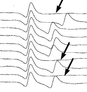 Single-fiber electromyography. A pair of action po