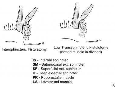Schematic of intersphincteric and low transsphinct