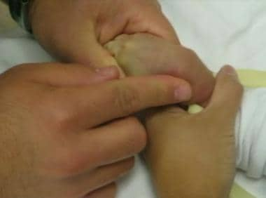 Vein palpation for pediatric IV cannulation.