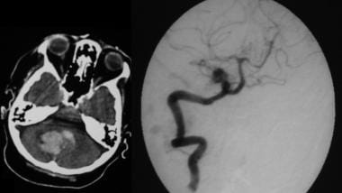 On the left, a nonenhanced CT scan demonstrates ac