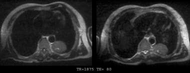 T2-weighted magnetic resonance images of the same