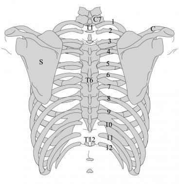 Posterior image of the thorax. The ribs are number