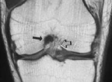 The normal femoral origin of the posterior cruciat