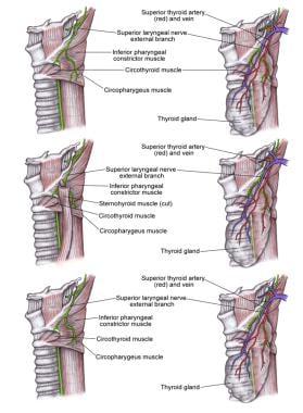 Superior laryngeal nerve (SLN).