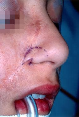 Clinical photograph of a z-plasty to reconstruct a