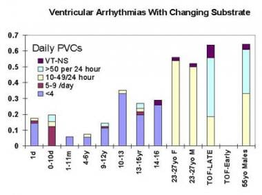 Ventricular arrhythmias with changing substrate. T
