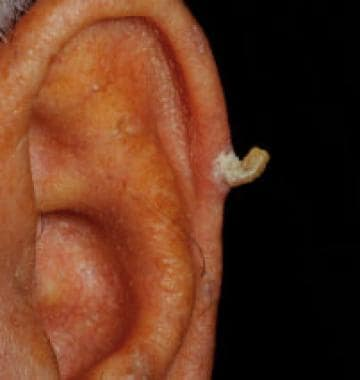 A typical presentation of a cutaneous horn on the