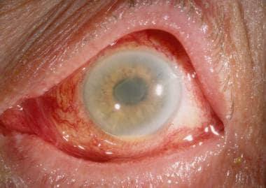 Diffuse limbus-to-limbus corneal edema and anterio