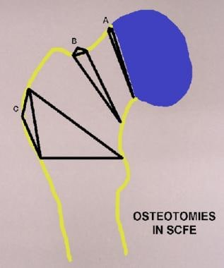 Osteotomies in slipped capital femoral epiphysis (