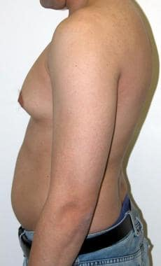 Preoperative lateral view of a patient with gyneco