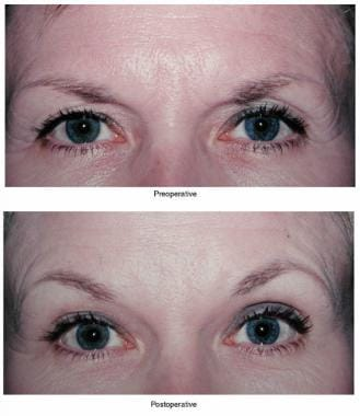Upper lid ptosis surgery. Correction of ptosis usi