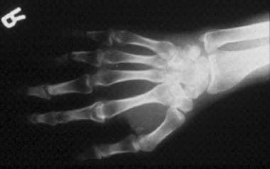 Psoriatic arthritis involving the distal phalangea