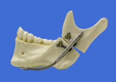 Distraction osteogenesis of the mandible. Intraora