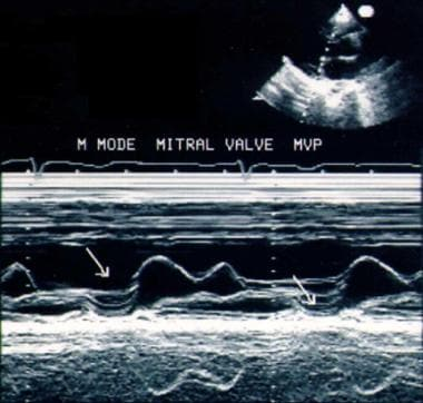 M-mode echocardiographic picture of mitral valve p