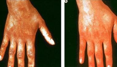 Left photograph shows hyperpigmentation on the dor
