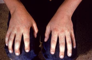 Elementary school child with Fifth Disease. Image