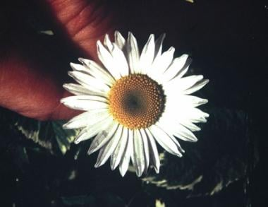 Daisy flower, Leucanthemum species, with character