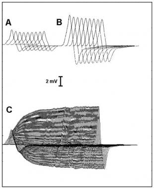 Repetitive nerve stimulation studies in Lambert-Ea