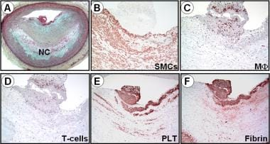 Case study: Plaque erosion in a 33-year-old female