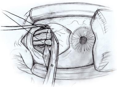 Westcott scissors flat against the sclera disinser
