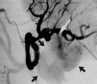 Splenic artery angiogram demonstrating contrast (w