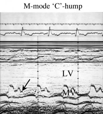 M-mode C-hump (arrow) echocardiogram in a patient