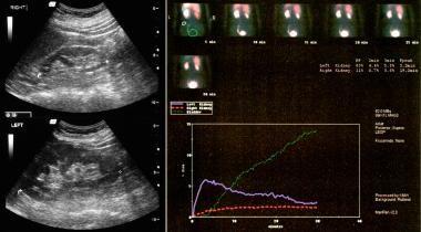 Renal artery stenosis/renovascular hypertension: S