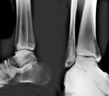 Calcaneus, fractures. Anteroposterior (AP) and lat
