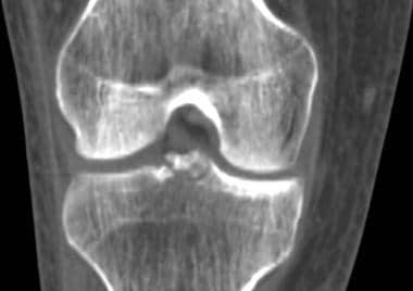 Tibial plateau fractures. Coronal reformatted CT.