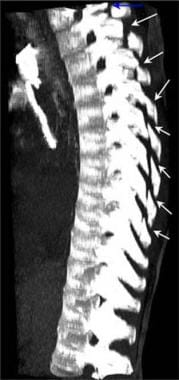 Thoracic spine trauma. Volume maximum intensity pr